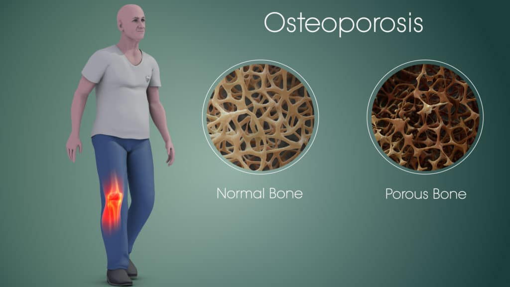 Survival Guide For Osteoporosis